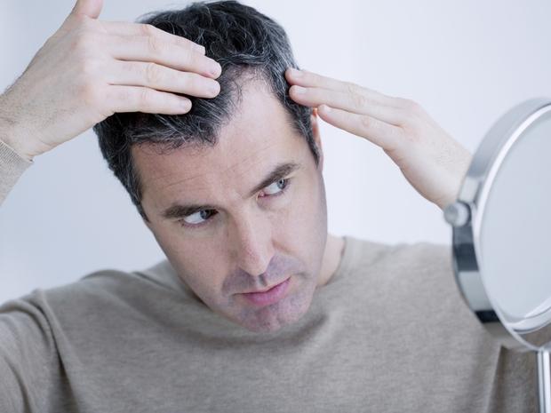 أحدث تقنيات زراعة الشعر