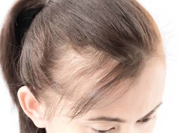 فراغات الشعر: الأسباب والعلاج