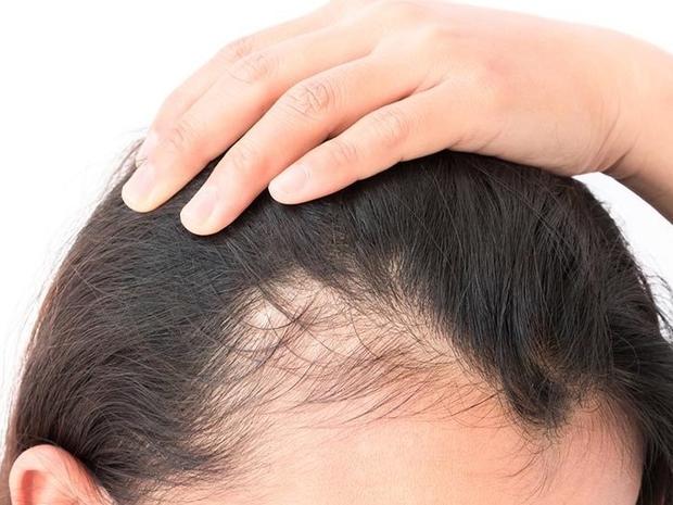 نمو الشعر بسرعة بالوصفات الطبيعية