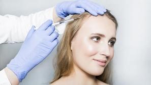 فيلر الشعر: خيارك الأفضل لعلاج مشاكل الشعر