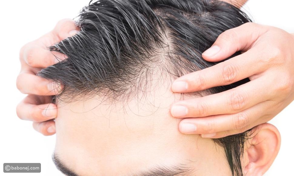 زراعة الشعر: كيف تتم العملية وما هي المخاطر وكم التكلفة؟