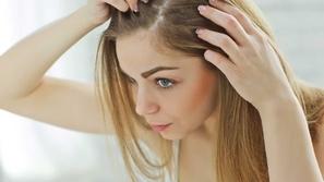 حبوب فروة الرأس وعلاجها