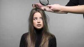 قشرة الشعر وأفضل طرق علاجها