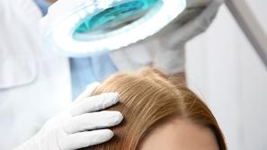 هل تناسبكِ عملية زراعة الشعر؟!