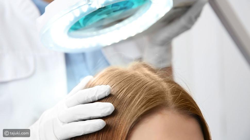 تقنياتزراعة الشعر
