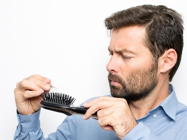 علاج تساقط الشعر للرجال وتكثيفه