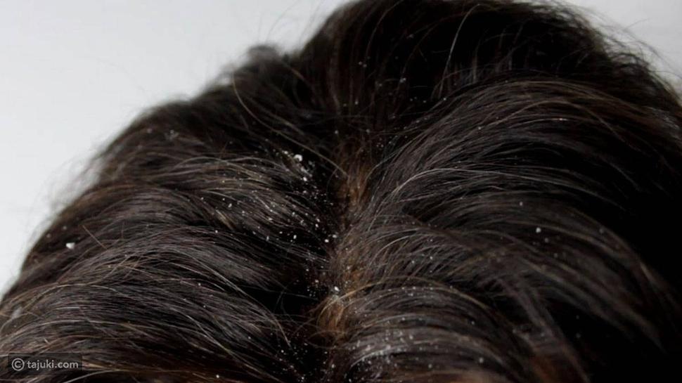 قشرة الشعر الدهنية