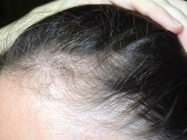 علاج Baby hair المتقصف