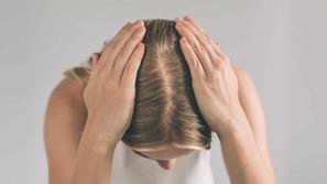 ايجابيات وسلبيات زراعة الشعر في الصيف