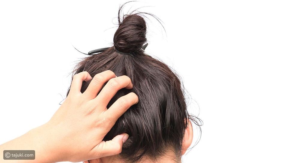 علاج صدفية الشعر بالطرق الطبيعية