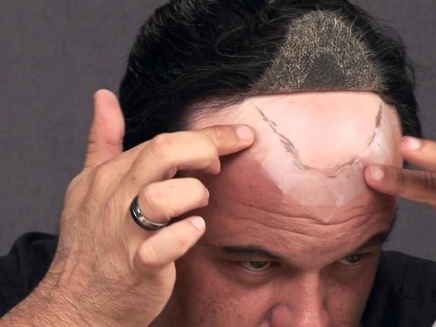 زراعة الشعر: بين المميزات والمخاطر!